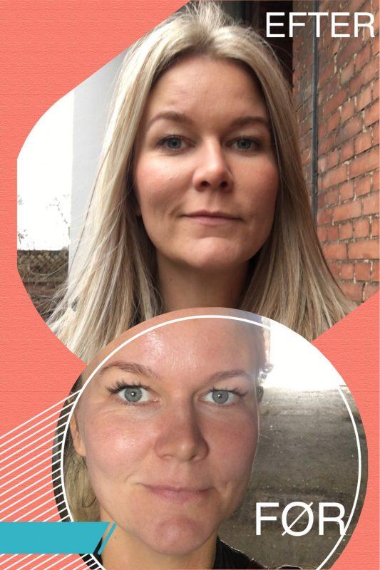 Et shot der formindsker porer i huden - Sydhavnsmor.dk
